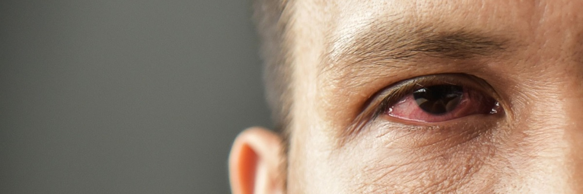 acupuncture-help-with-dry-eyes