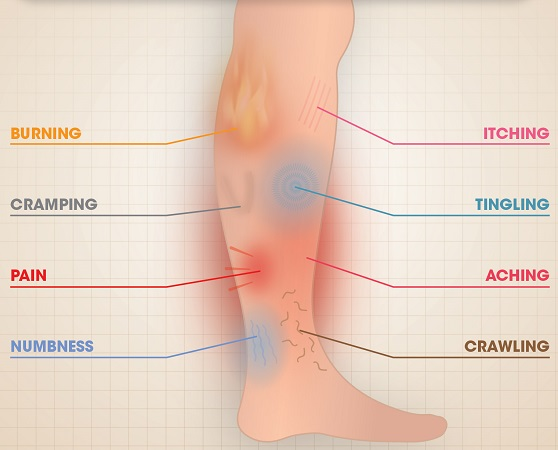 restless-leg-syndrome-treatment