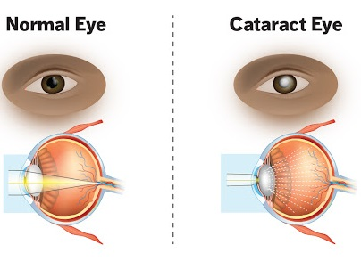 how-to-avoid-cataracts