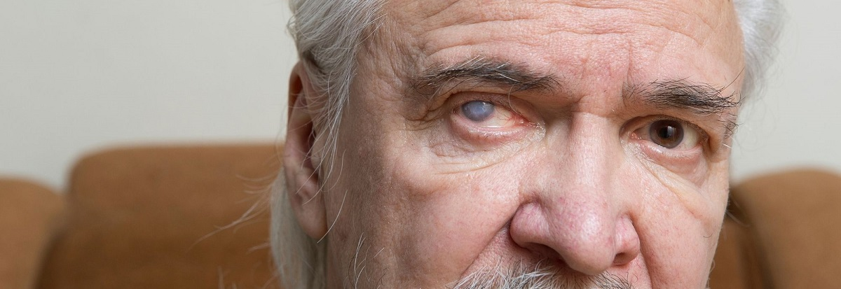 how-to-cure-cataract-naturally-without-surgery