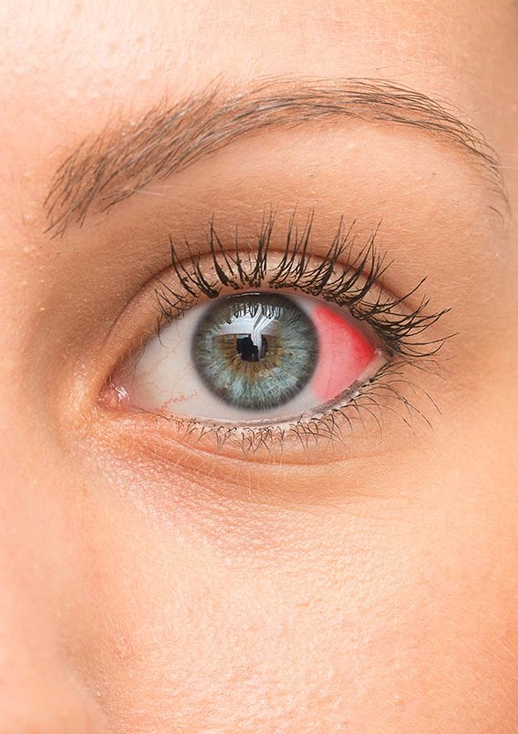 how-to-get-rid-of-blood-clot-in-eye-2021