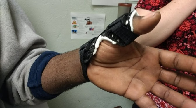 Splint that has been 3D printed in a material of an appropriate skin color and fit to a client's hand.