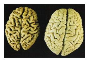 shrinking brain