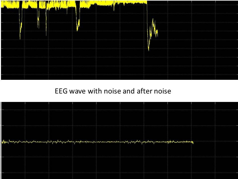 eeg circuit output results