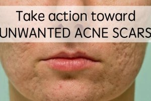 how to get rid of acne scars