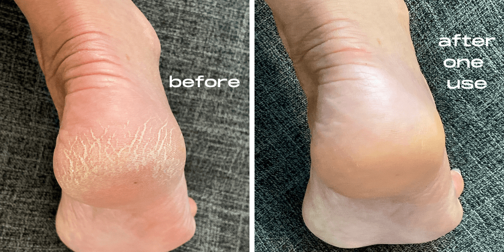 Kerasal before and after on dry cracked feet