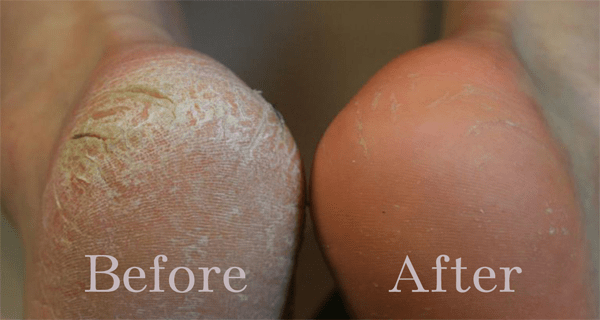 10 SIMPLE HOME REMEDIES FOR DRY, CRACKED HEELS
