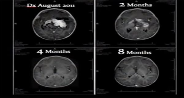 Cannabis Oil Cures Infants Inoperable Brain Tumor