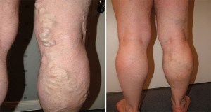 How to Cure Varicose Veins with Horse Chestnut