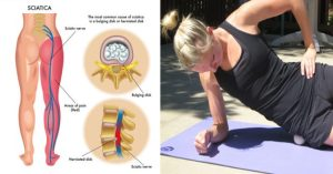 18 SIMPLE TRICKS TO GET RID OF SCIATICA PAIN FAST