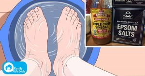 The Epsom Salt and Apple Cider Vinegar Foot Bath Recipe – That Reverses Foot Pain in 20 Minutes
