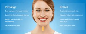 Importance of Having Orthodontic Treatment