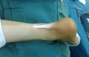 Achilles Tendon Injuries: Dealing With The Outcome