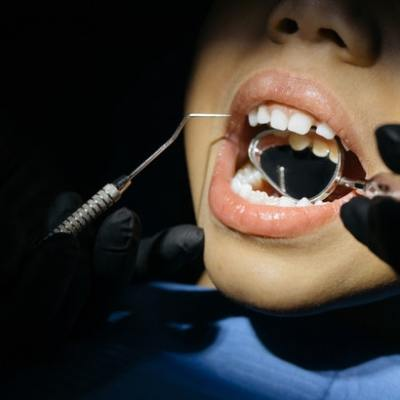 Top Quality Pediatric Dentistry With the Best Chief Dentist in California