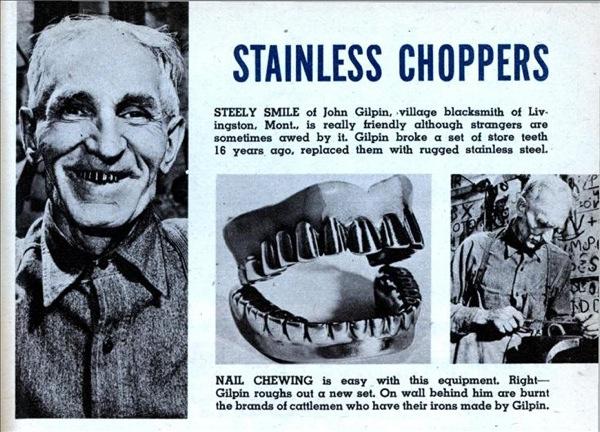 Stainless steel teeth