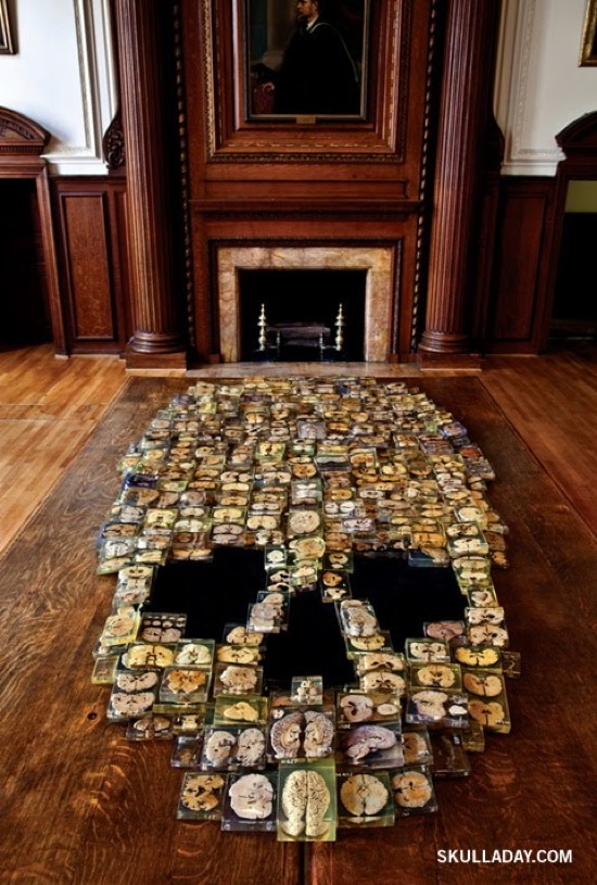 """Giant skull collage, made from """"Zombie"""" brain slices"""