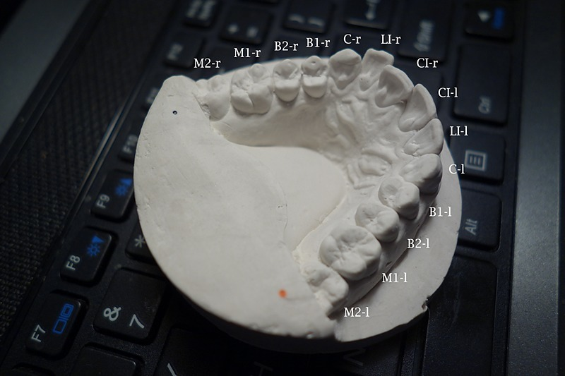 Can You Fix Your Own Teeth With 3d Printed Retainers Make