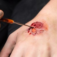 blood-opener