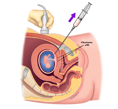 Chorionic Villus Sampling Procedure
