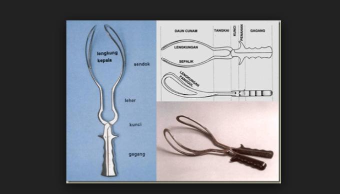 alat forceps
