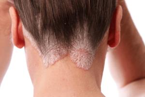 psoriasis kulit bersisik