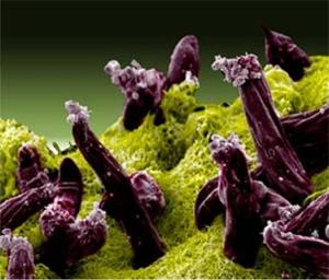 Plasmodium gallinaceum
