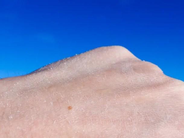 o sal residual quando não tiramos a água da laguna do corpo