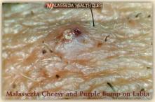 Malassezia Bumps on Labia 2 G -MQ