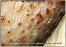 Bumpy Hair Follicle Lesions-MQ