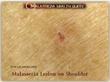 Malassezia Lesion on Shoulder1-MQ