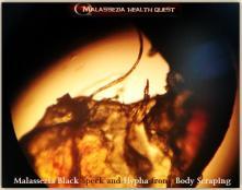 Malasseia Black Speck -MQ