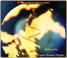 Malassezia Beaded Hyphae1-MQ