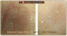 Malassezia Fungus on Finger Tips 5-MQ