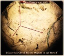 Malassezia Liquid and Hyphae in Eye2-MQ