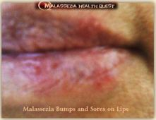 Sores on Lips1 -MQ