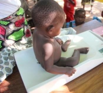 Malnutrition Malawi