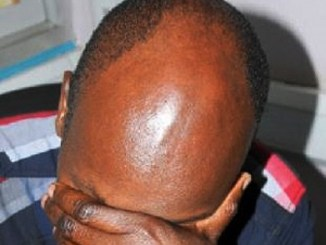 Mozambique Bald Men Attacks