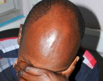 Mozambique Bald Men Attacks