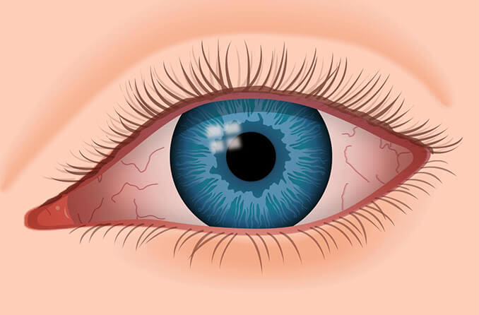 Redness in the eye due to dry eye