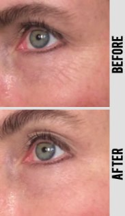 Before and After of Instant Wrinkle Reducer