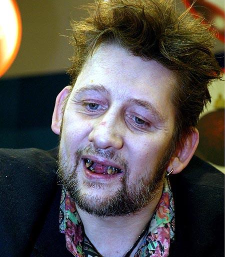 Shane MacGowan Teeth