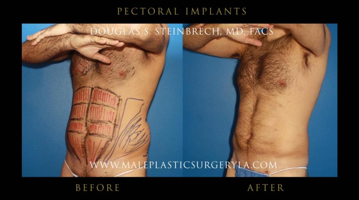 pectoral implants before & after photos los angeles
