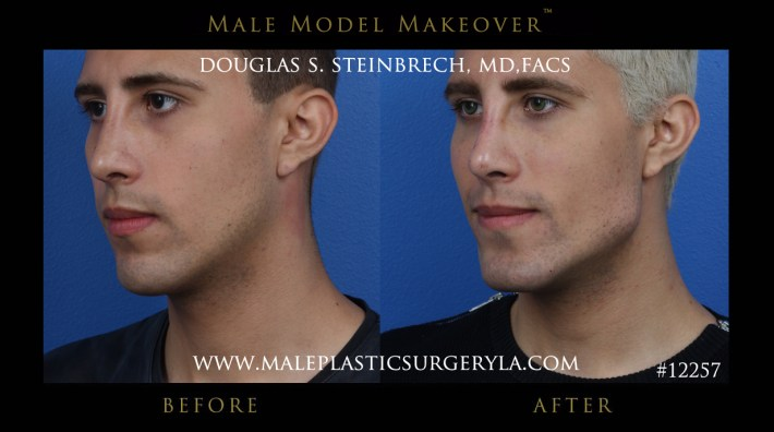 male model makeover before and after photos in los angeles