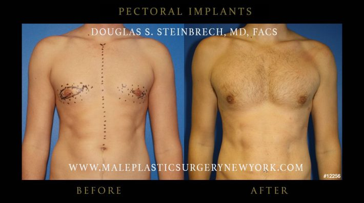 pectoral implants gallery before & after photos nyc patients