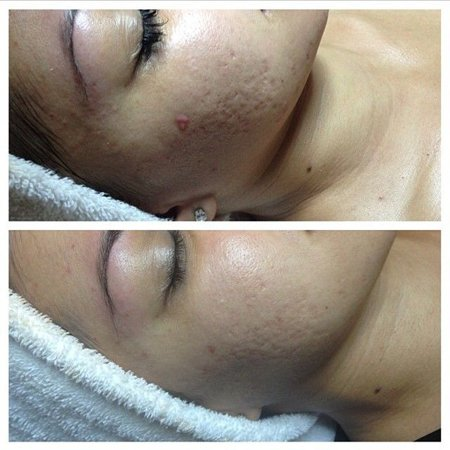 Микродермабразия лица: алмазный пилинг, процедура, фото до ...