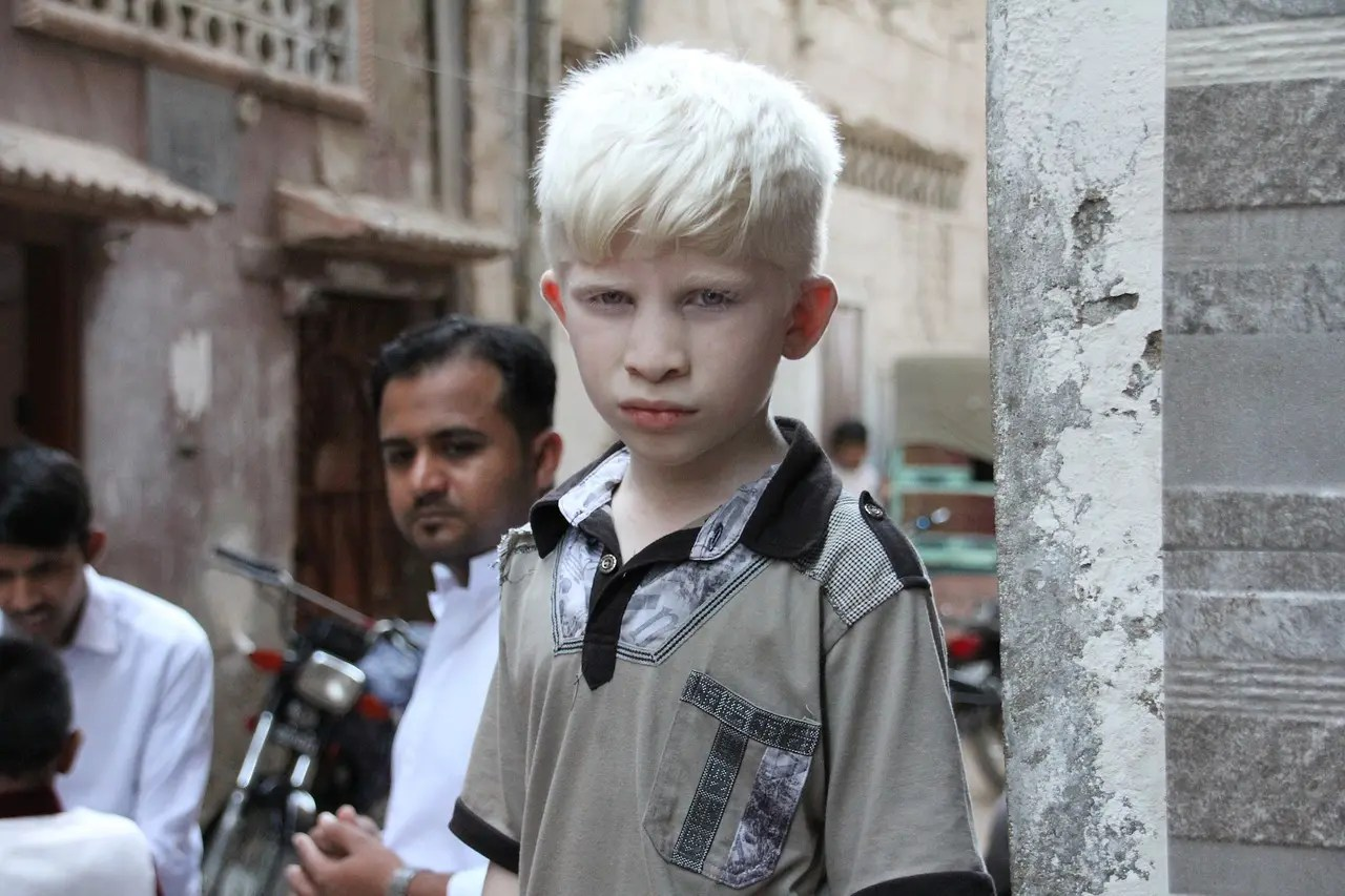 International Albinism Day