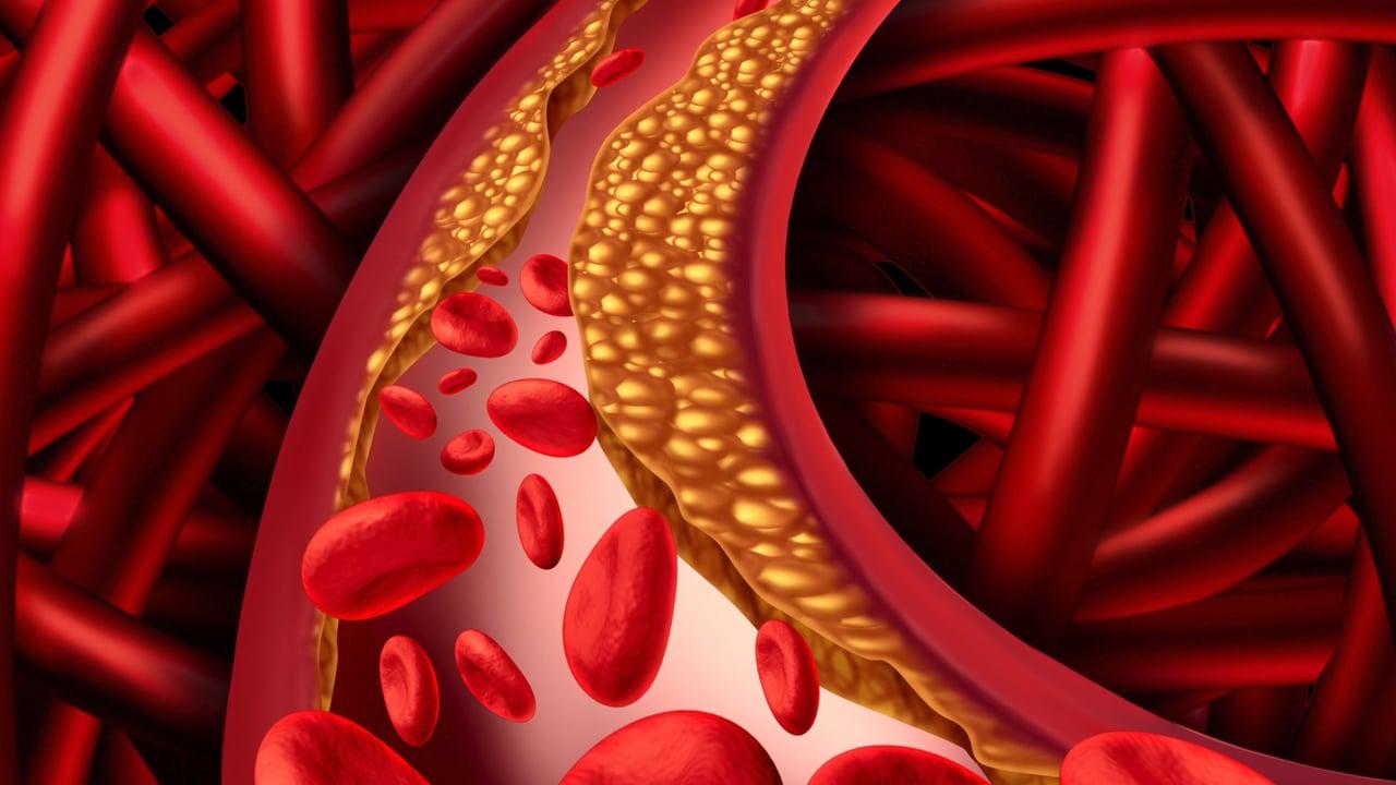 que significa colesterol de baja densidad alto