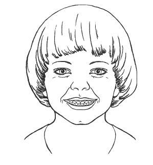 логопед - улыбка