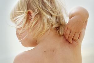 Dermatita atopică. Cauze, simptome și tratament
