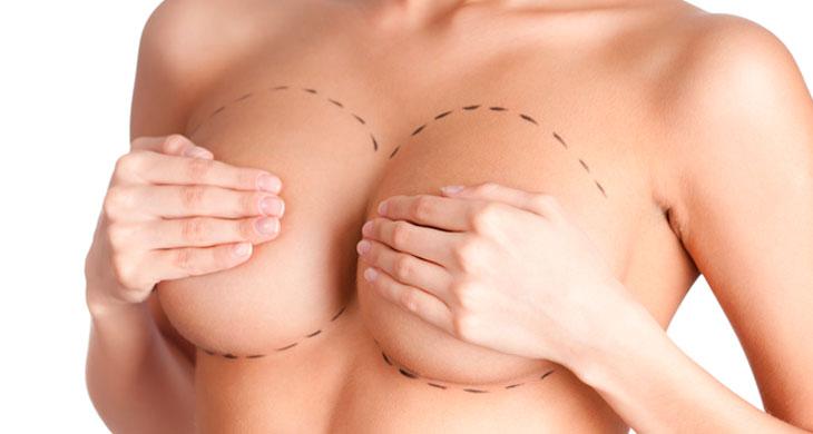 Cirurgias plásticas mamárias